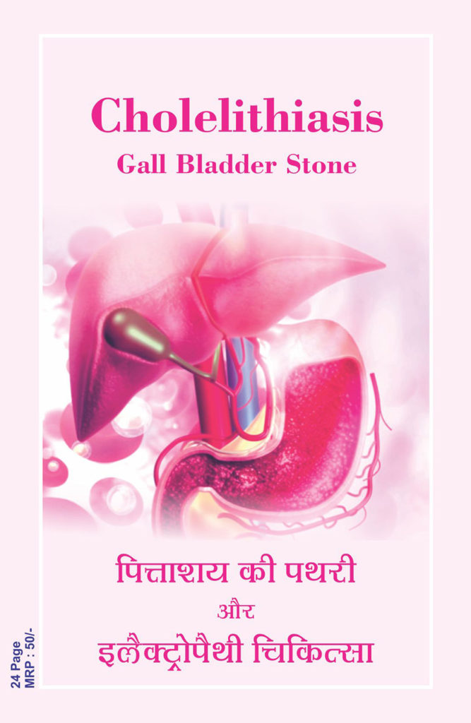 Gall Stone – Electropathy Chikitsa